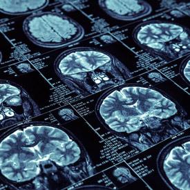Brain CT scans result